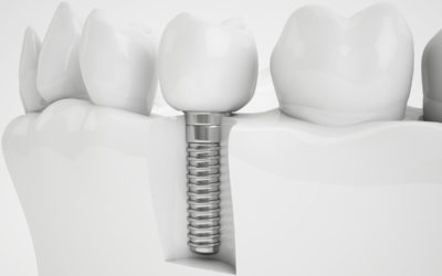 Implante dental con poco hueso, ¿es posible?